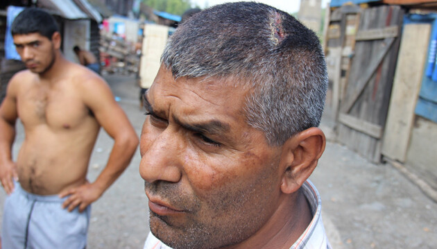 This man from the Zabijanec settlement in Rudňany, Slovakia, says police caused him injuries during their raid in the summer of 2015. (PHOTO:   Rudolf Sivý)