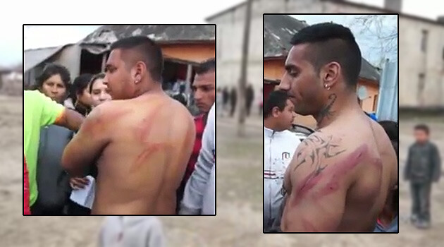Slovak Police allegedly beat up several Romani residents of the municipality of Vrbnica, Michalovce District, on 2 April 2015, such as this man. (PHOTO:  TV ROMED, collage by Romea.cz)